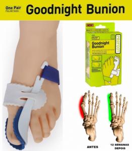 Alivia a Dor Causada por Joanetes | Corrige o Dedo Enquanto Dorme !